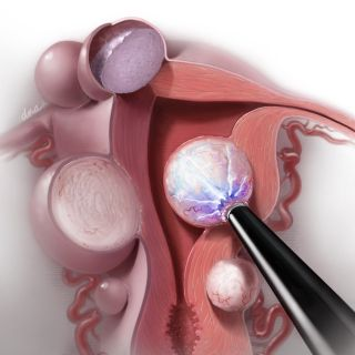 Radiofrequency Ablation of Uterine Fibroids