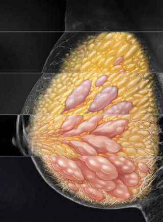Breast Density and Mammography