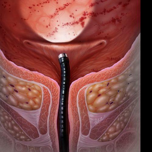 Internal Cystitis