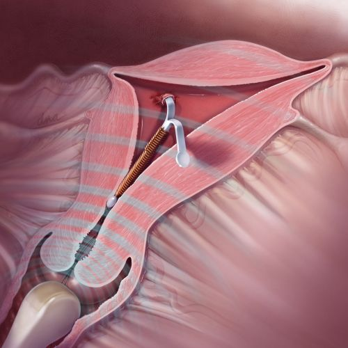 Removal of Embedded IUD
