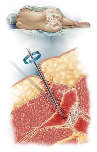 PSIS Bone Marrow Sampling