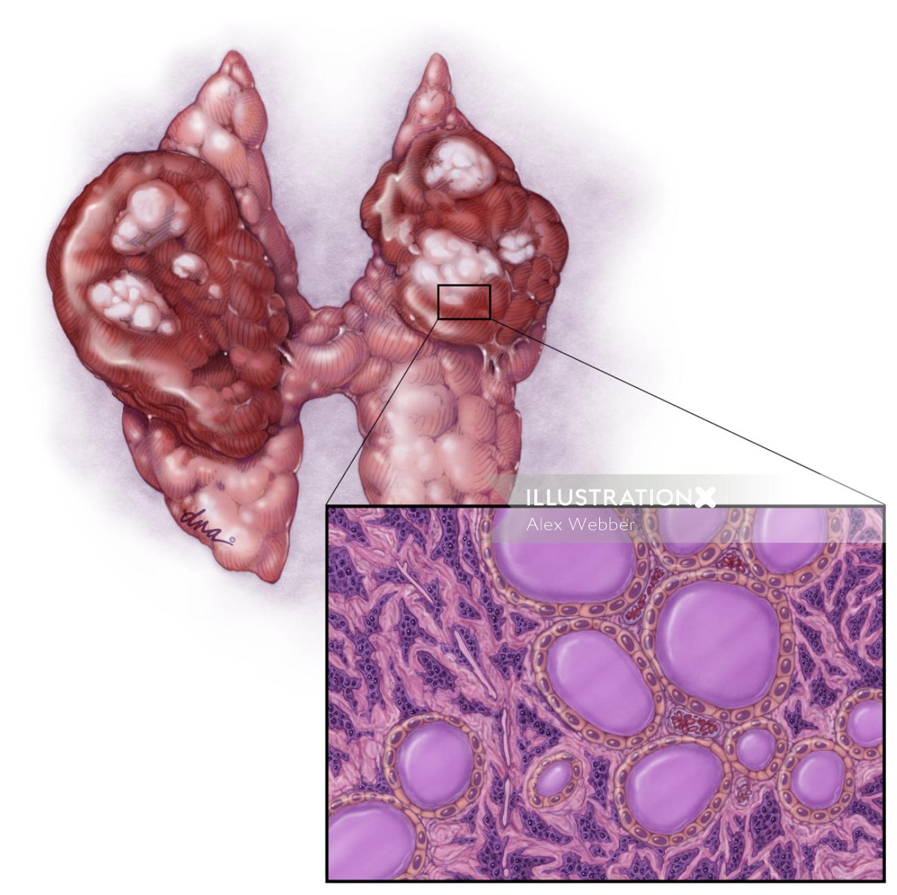 Thyroid Cancer medical magazine graphic