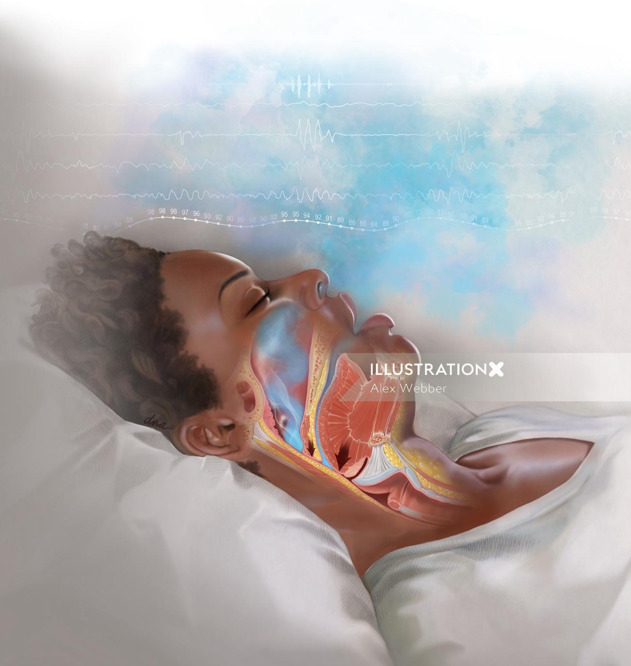 Obstructive Sleep Apnea Medical illustration