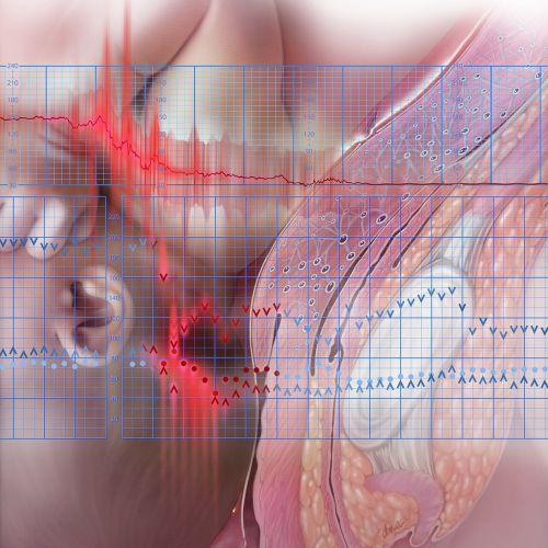 Medical illustration of Amniotic Embolism