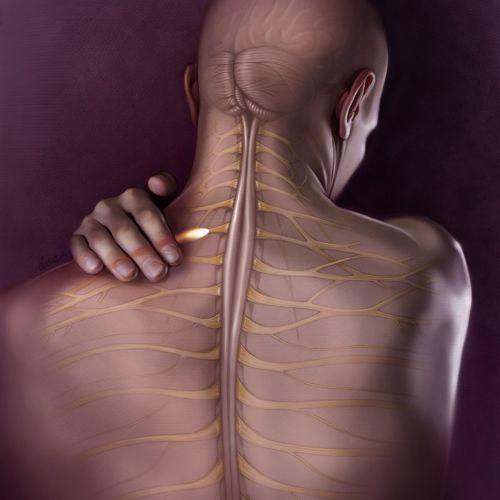Back pain medical illustration