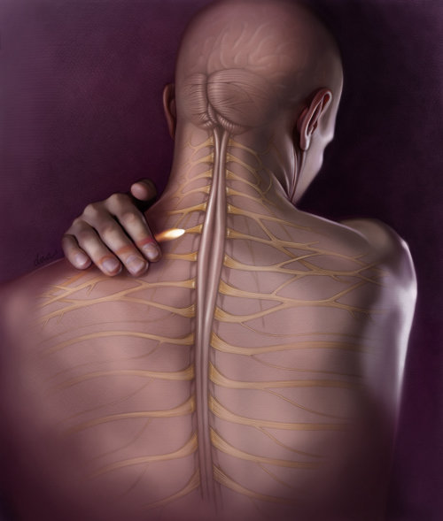 Back pain medical illustration