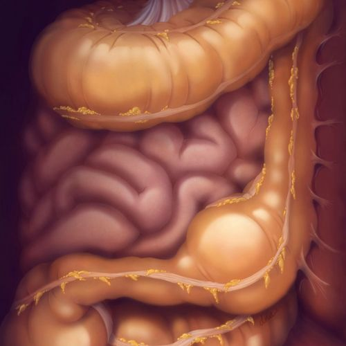Constipation in large intestine illustration by AlexBaker