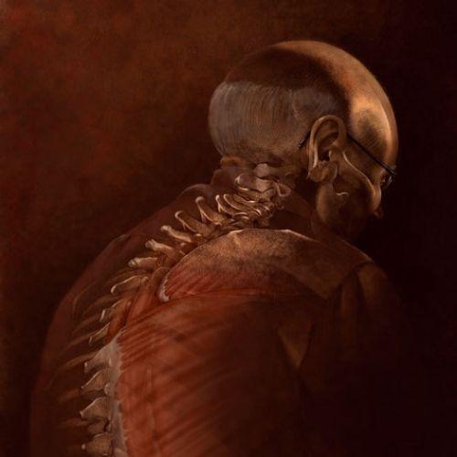 Alex Webber Medical illustrator. USA