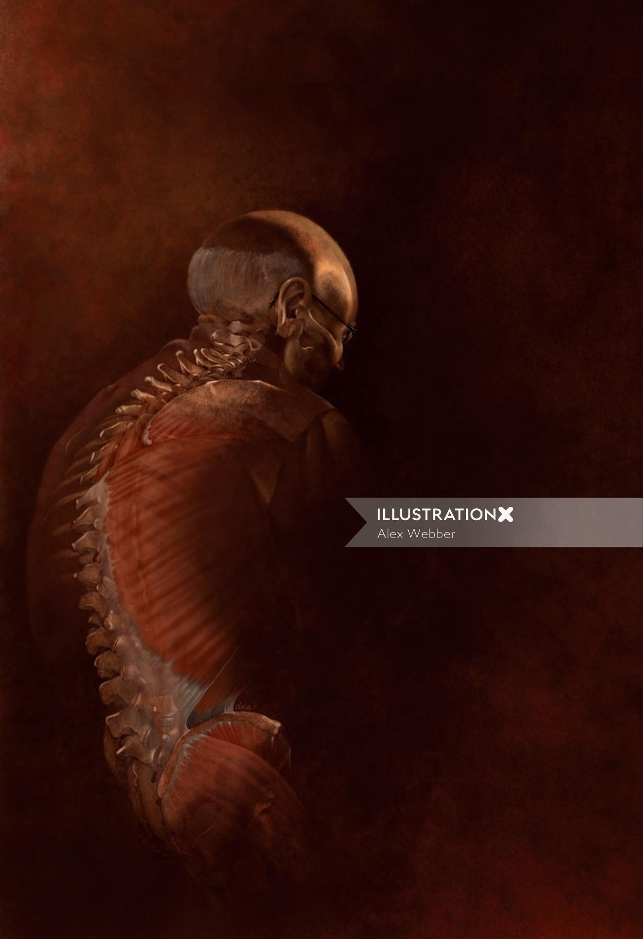 Psychomotor dysadaptation syndrome illustration