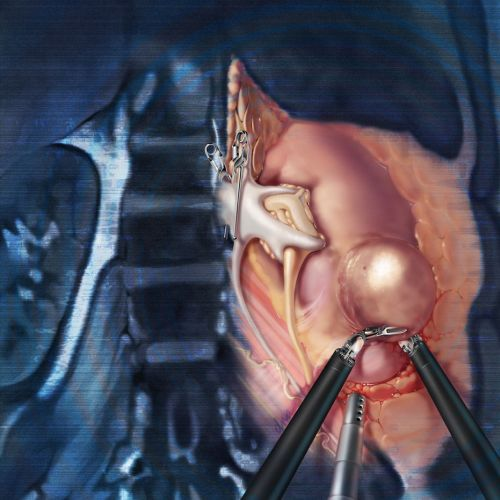 Robotic partial nephrectomy illustration by AlexBaker