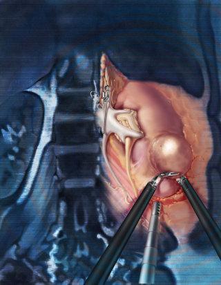 Robotic partial nephrectomy illustration by AlexBaker