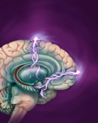 Electroconvulsive therapy illustration by AlexBaker