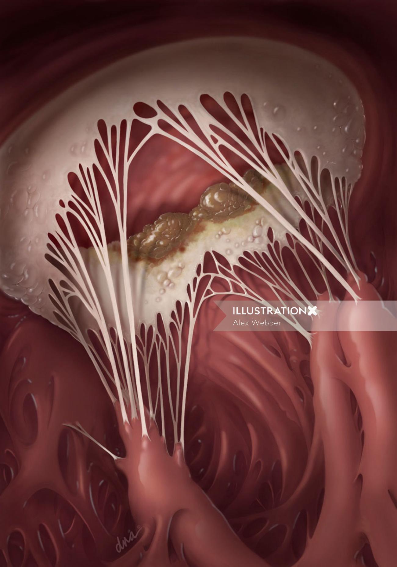 An illustration of Endocarditis