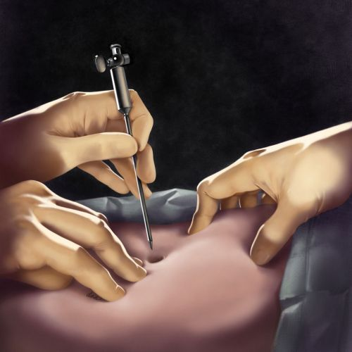 Insertion of Veress needle illustration by AlexBaker