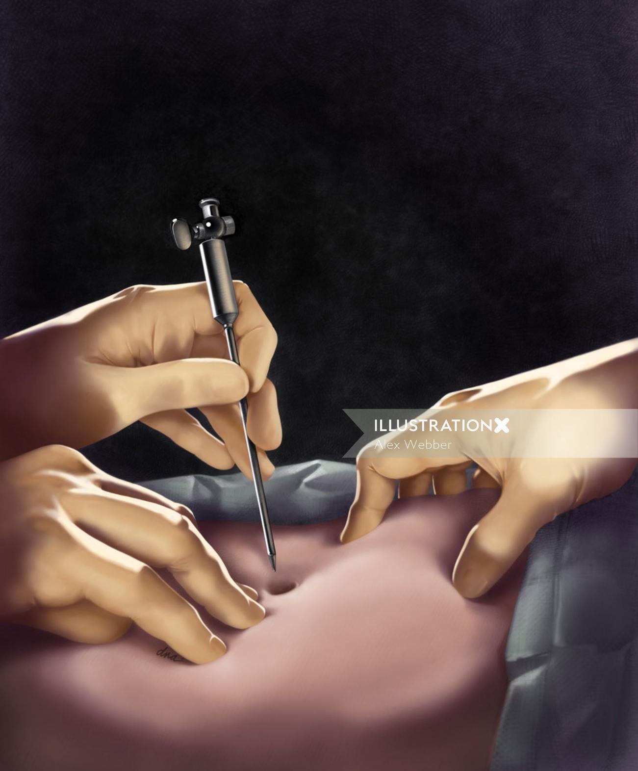 Insertion of Veress needle illustration by AlexBaker