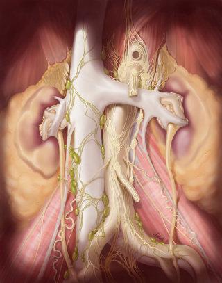 Retroperitoneal lymph node dissection illustration