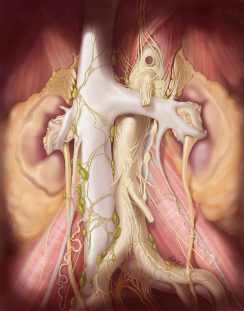 Retroperitoneal lymph node dissection illustration