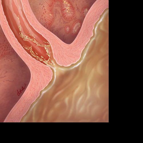Gastroesophageal reflux illustration by AlexBaker