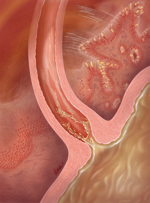 Gastroesophageal reflux illustration by AlexBaker