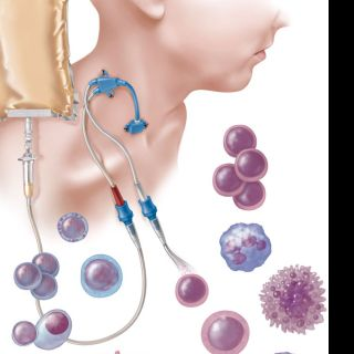 Hematopoietic stem cell transplant illustration by AlexBaker