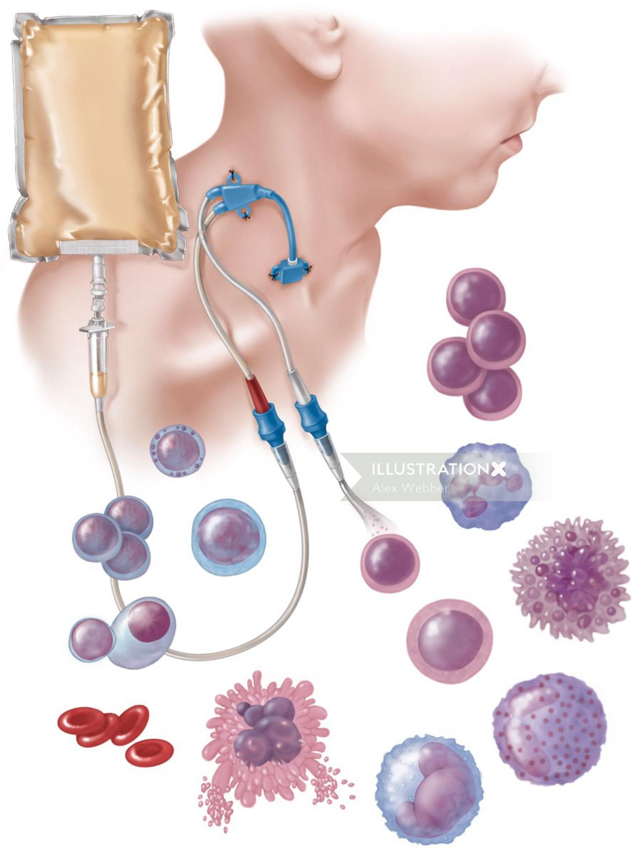 Hematopoietic stem cell transplant illustration by AlexBaker