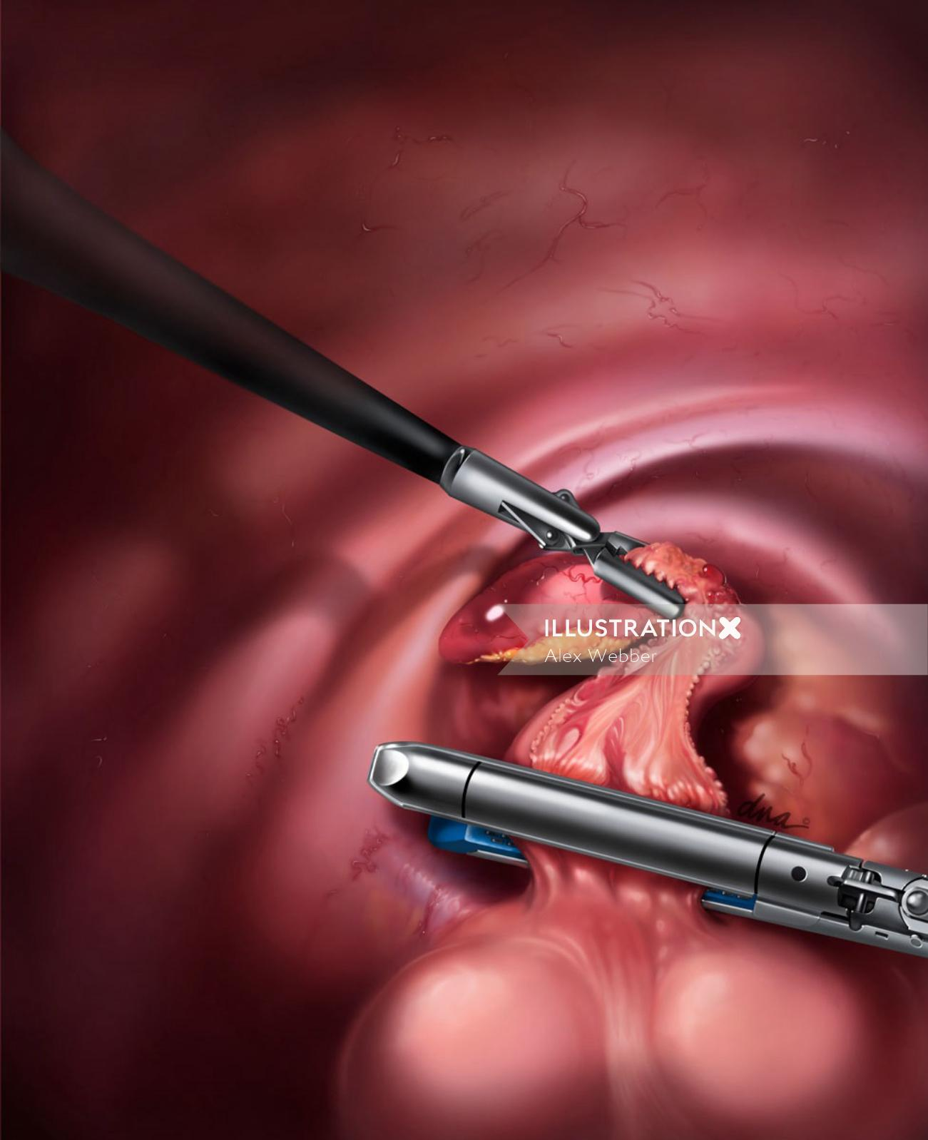 An illustration of Laparoscopic appendectomy