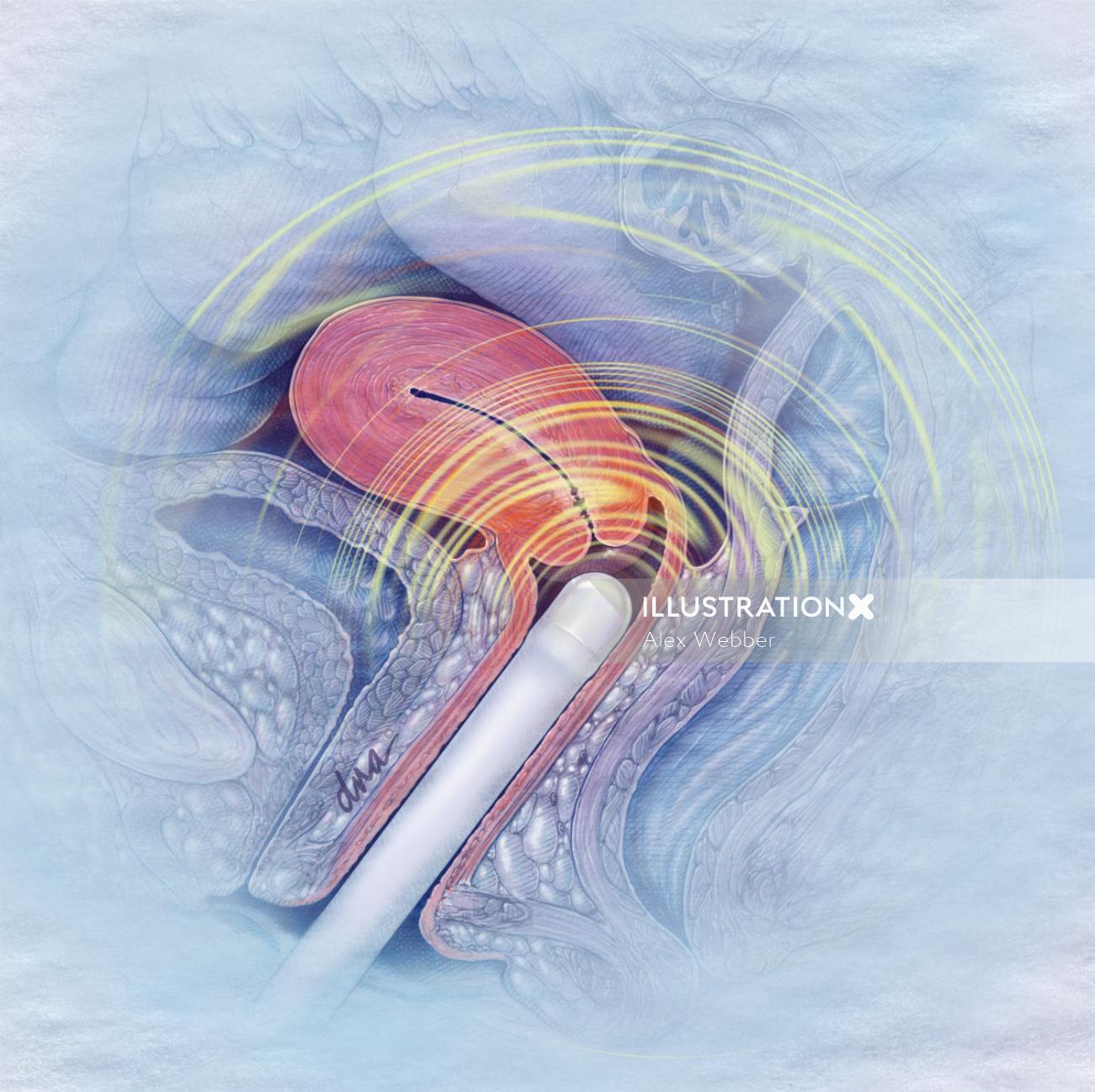 Post-menopausal bleeding illustration by AlexBaker