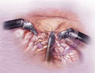 Uterine artery surgery illustration by AlexBaker
