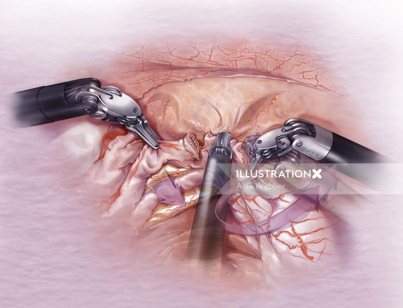 Uterine artery surgery illustration by AlexBaker
