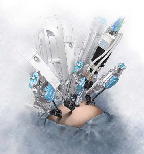 Robotic surgery illustration by AlexBaker