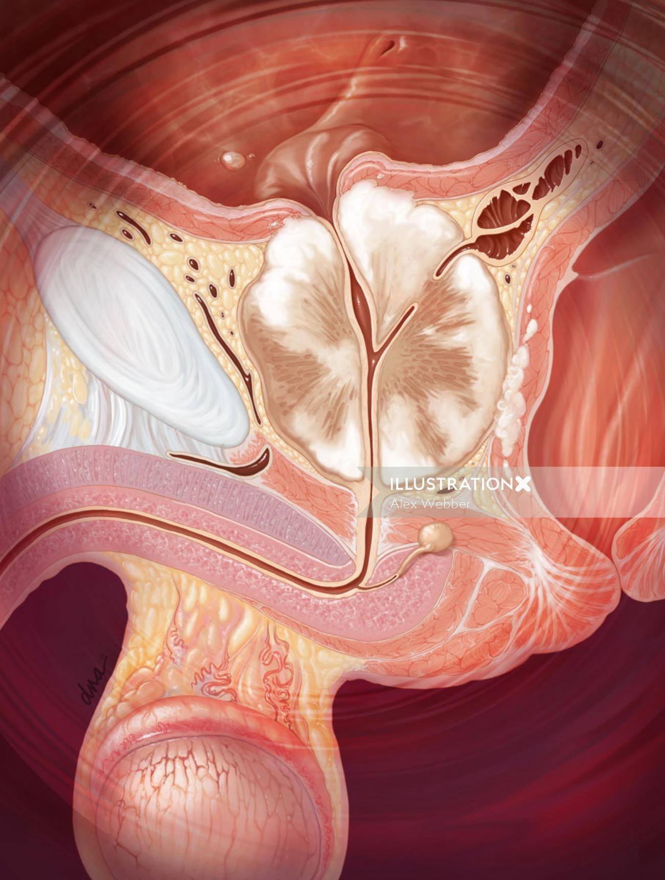 Prostate cancer illustration by AlexBaker