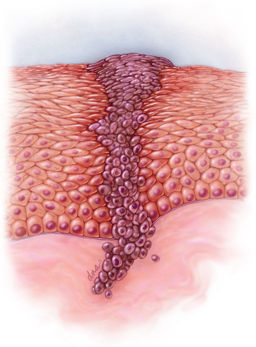 An illustration of melanoma