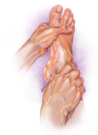 Peripheral neuropathy illustration by AlexBaker