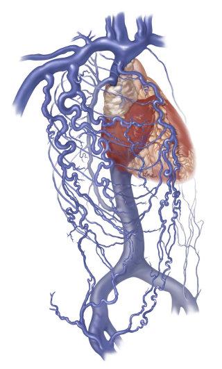 Medical illustrations of Superior Vena Cava Syndrome