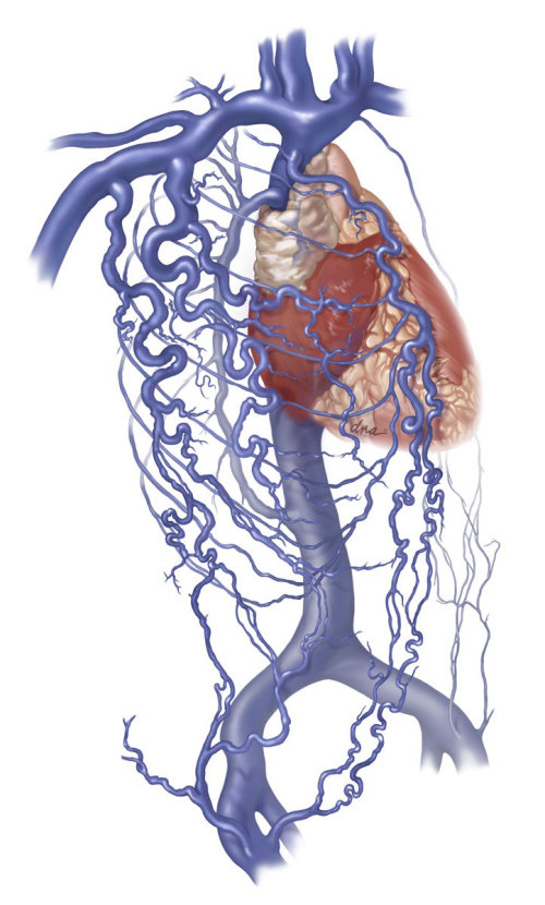 Medical illustrations of Superior Vena Cava Syndrome