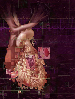 Low ventricular ejection illustration by AlexBaker