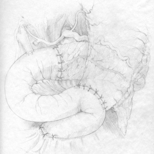An illustration sketch of Whipple procedure