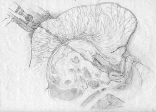 An illustration sketch of surgery with morbid obesity