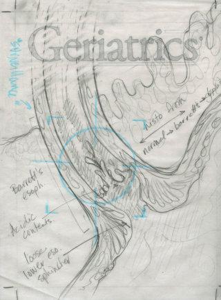 An illustration of Barrett's esophagus