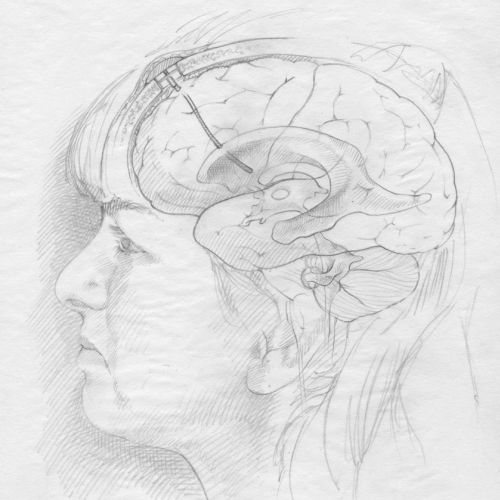An illustration sketch of brain stent for delivery of chemotherapy