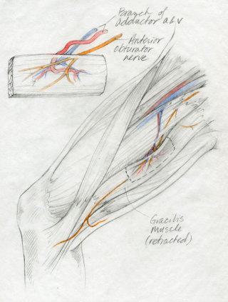 Medical illustration -  Gracilis muscle flap