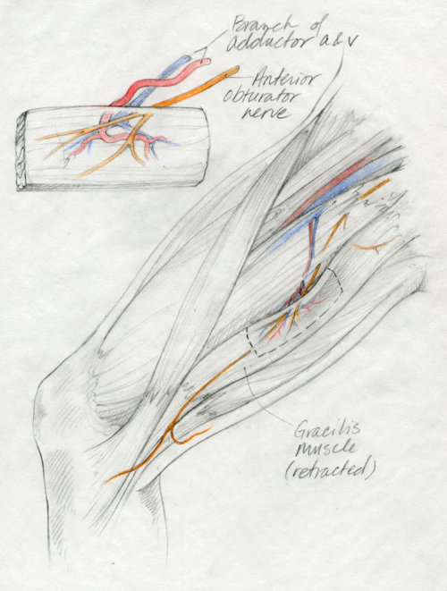 Medical illustration -  Gracilis muscle flap