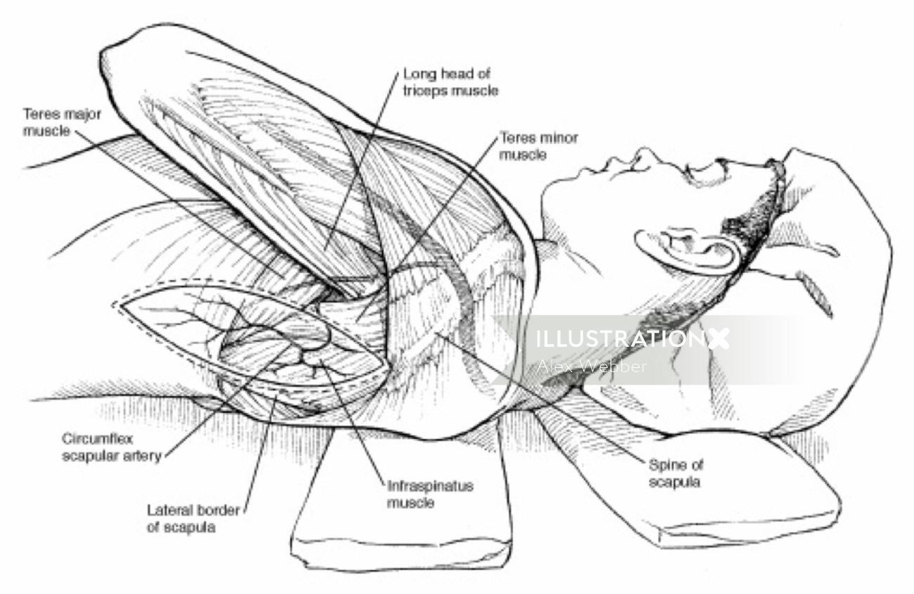 Heart surgery medical illustration