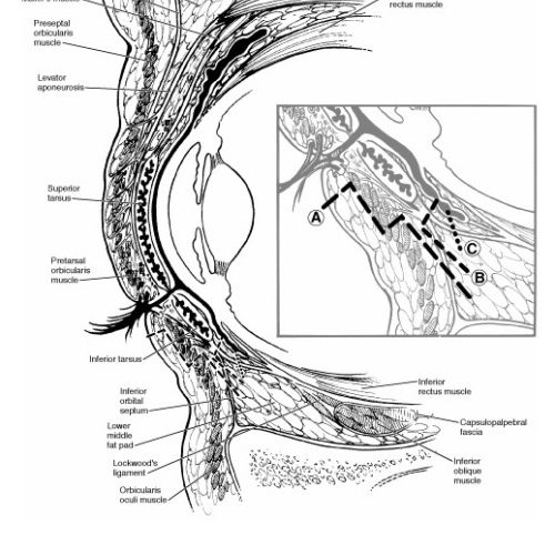 An illustration of Anatomy of the orbit blepharoplasty