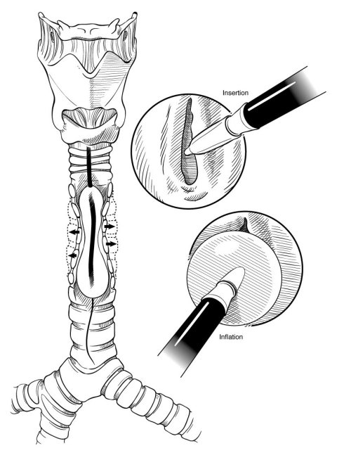 Medical illustration of operation