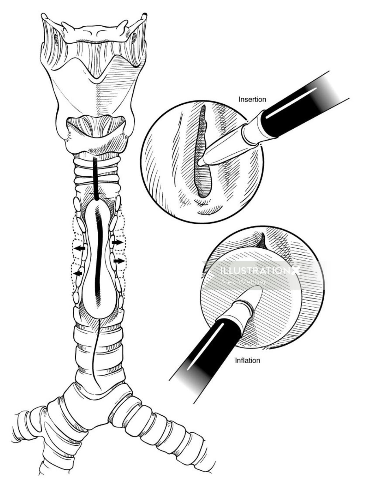 Medical illustration of operation