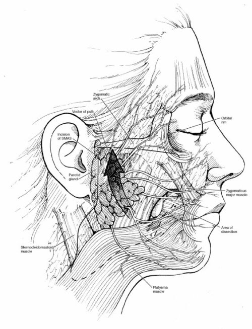 Medical illustration of face layers