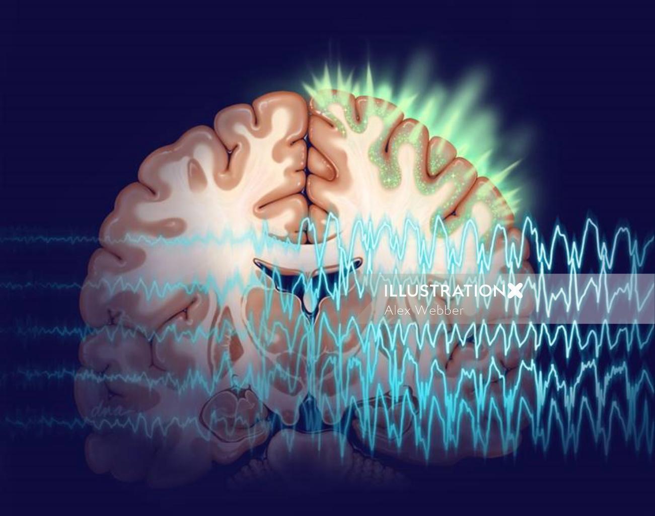 Medical illustration of Seizures