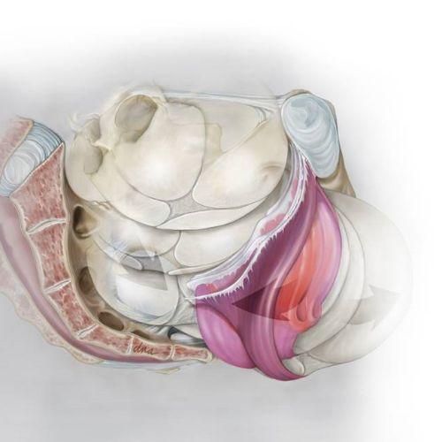 Levator Ani Injury medical illustration