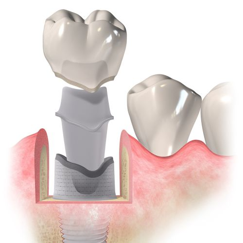 Medical illustration dental implant